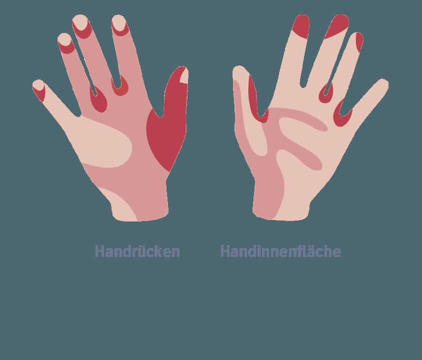 Das Mittel von gribka zwischen der Finger der Hände